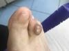 dermatologie timisoara
